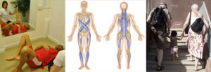 RS Physiotheraphy